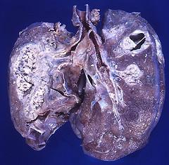 Hodgkins Disease Lymphoma